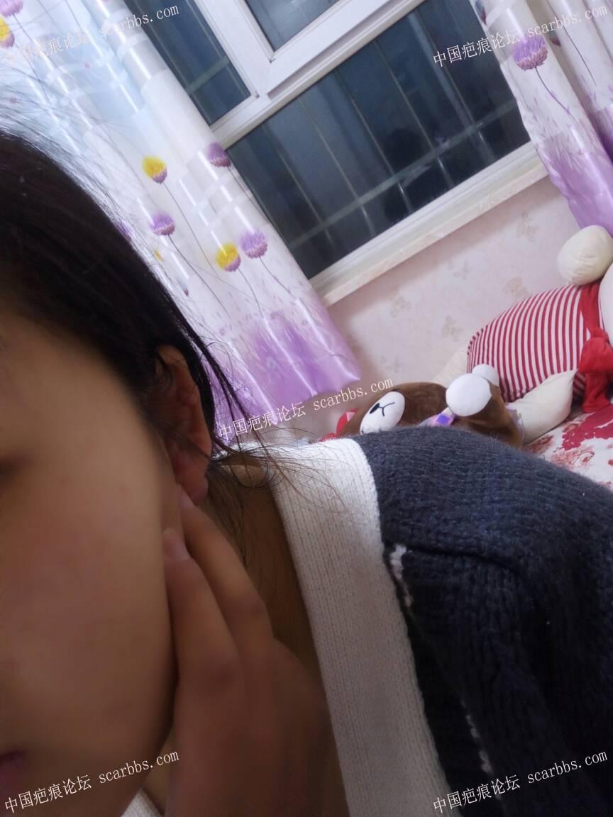 打耳洞长的疤痕疙瘩,一年了,没治疗过78-疤痕体质图片_疤痕疙瘩图片-中国疤痕论坛