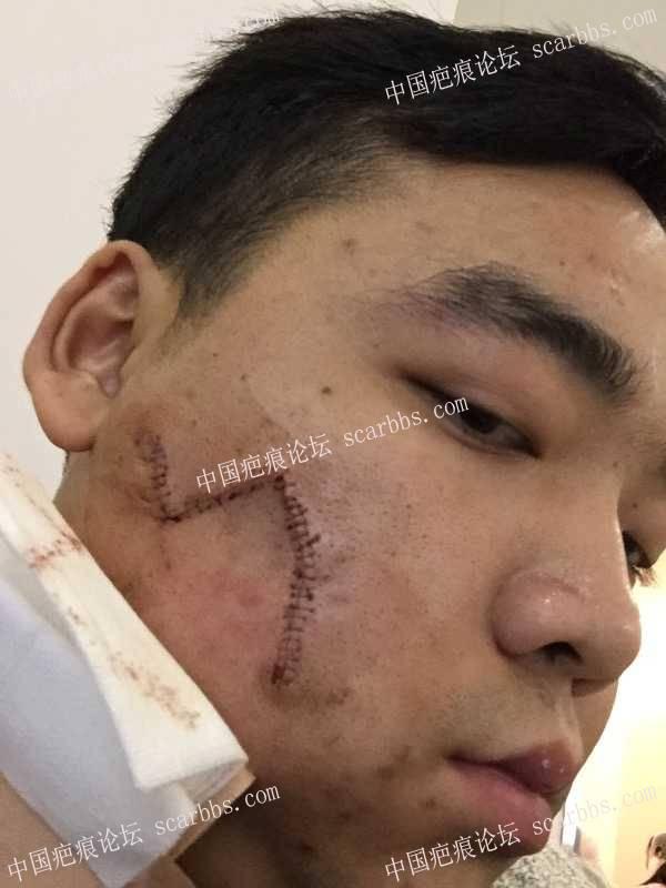找杨东运医生作的脸部圆形疤痕切缝手术