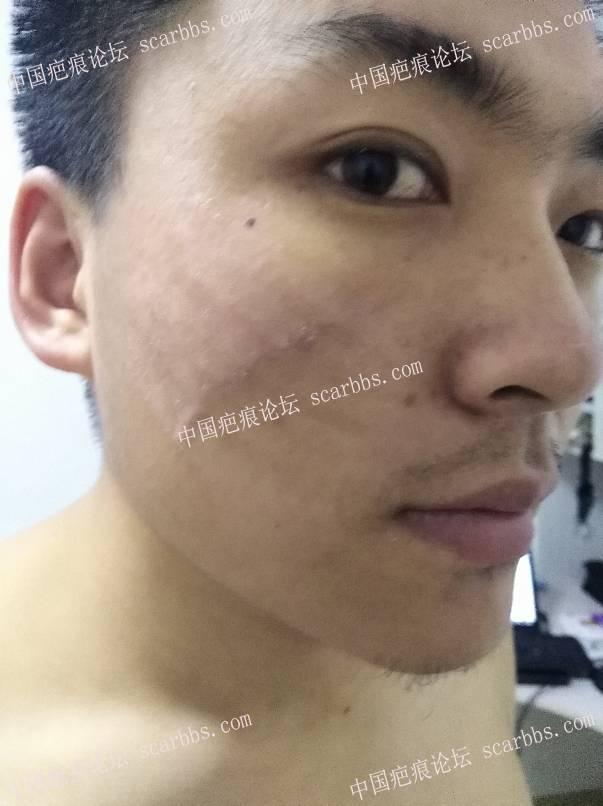面部的凹陷疤痕,手术修复效果分享