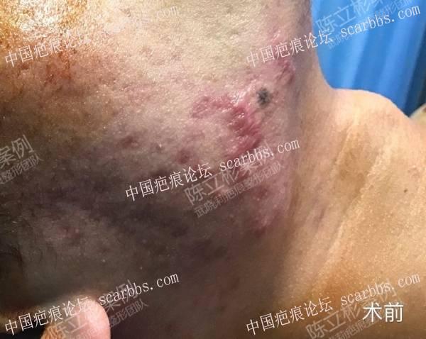 胸部疤痕疙瘩、下颌疤痕疙瘩术后8个月复诊84-疤痕体质图片_疤痕疙瘩图片-中国疤痕论坛