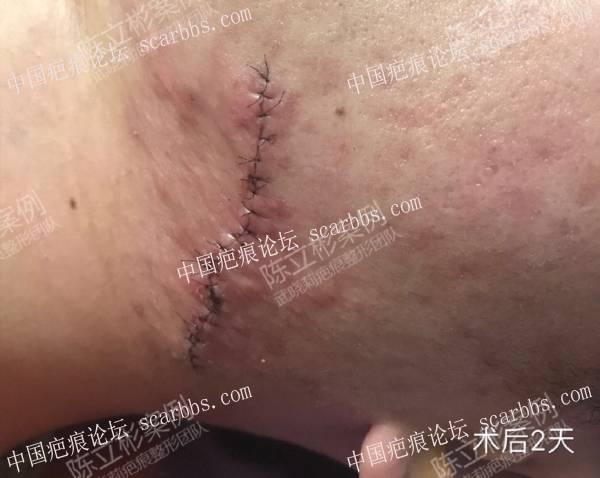 胸部疤痕疙瘩、下颌疤痕疙瘩术后8个月复诊71-疤痕体质图片_疤痕疙瘩图片-中国疤痕论坛