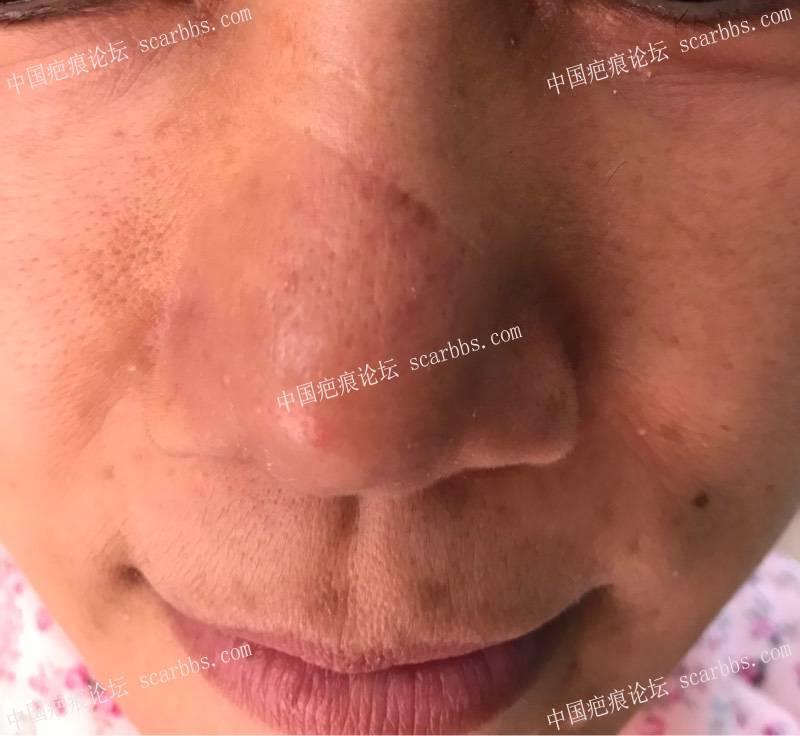 鼻梁上的切缝疤痕做过一次修复,好了很多69-疤痕体质图片_疤痕疙瘩图片-中国疤痕论坛