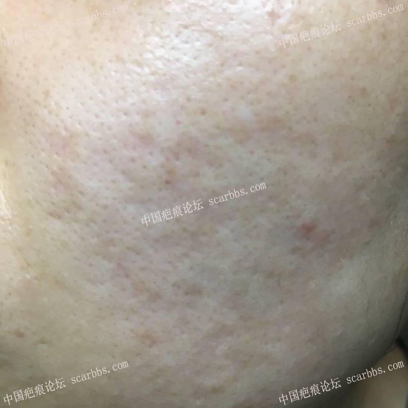 首次切除拆线7周后第一次点阵+磨削99-疤痕体质图片_疤痕疙瘩图片-中国疤痕论坛