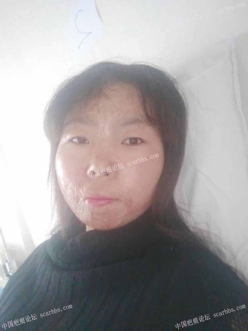 烧伤疤痕做扩张器过程期待每一次的改变48-疤痕体质图片_疤痕疙瘩图片-中国疤痕论坛