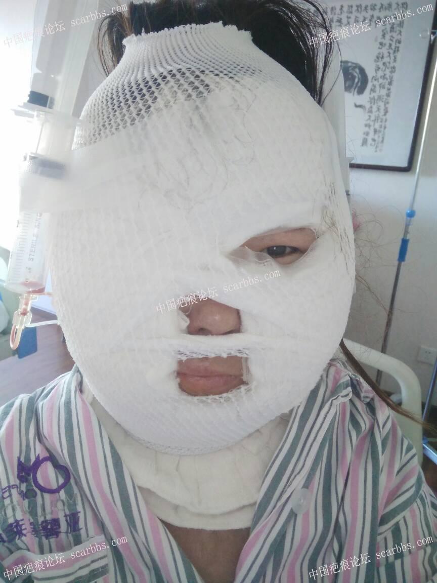 烧伤疤痕做扩张器过程期待每一次的改变50-疤痕体质图片_疤痕疙瘩图片-中国疤痕论坛