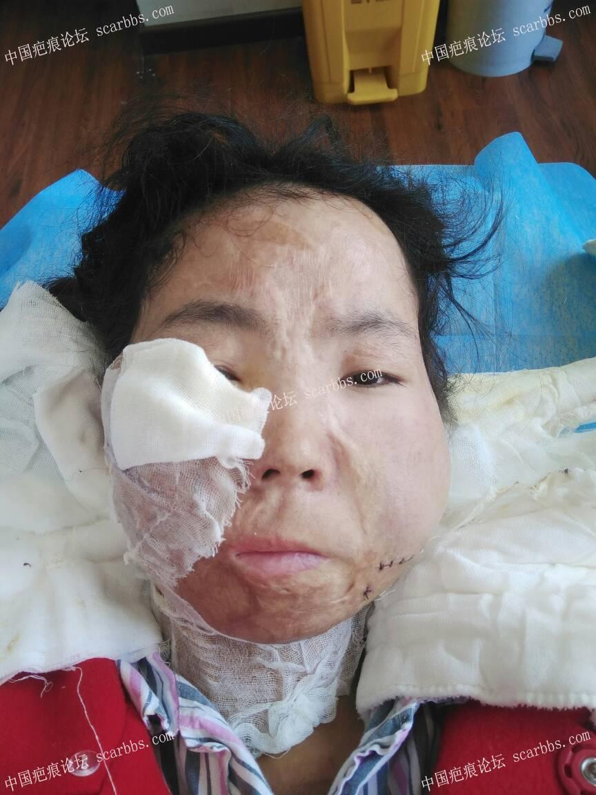 烧伤疤痕做扩张器过程期待每一次的改变89-疤痕体质图片_疤痕疙瘩图片-中国疤痕论坛