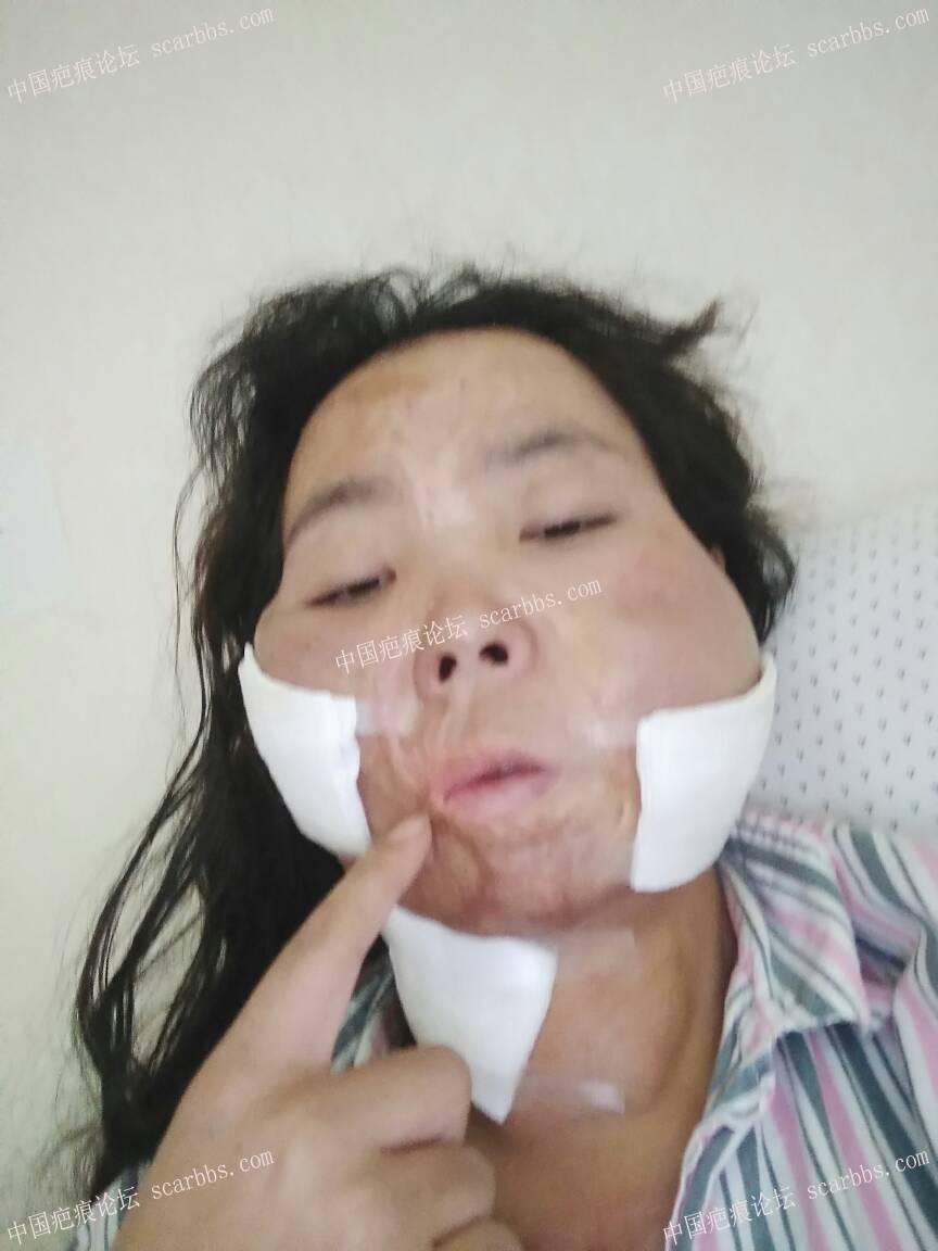 烧伤疤痕做扩张器过程期待每一次的改变42-疤痕体质图片_疤痕疙瘩图片-中国疤痕论坛