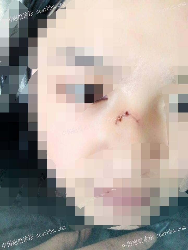 鼻子部位的缝针疤痕治疗恢复图