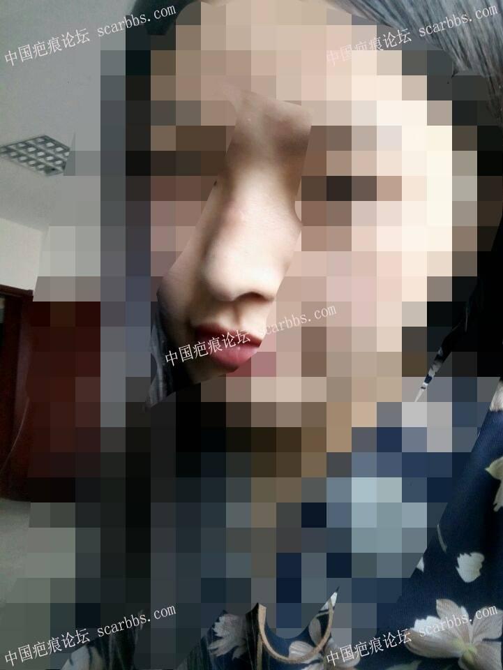 鼻子部位的缝针疤痕治疗恢复图88-疤痕体质图片_疤痕疙瘩图片-中国疤痕论坛