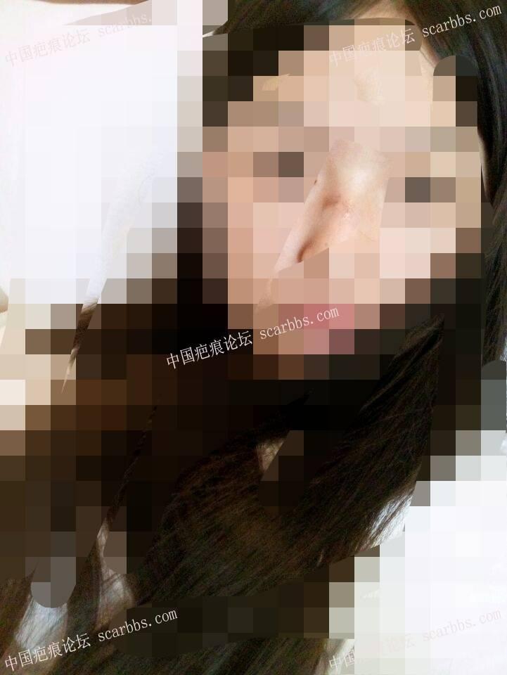 鼻子部位的缝针疤痕治疗恢复图99-疤痕体质图片_疤痕疙瘩图片-中国疤痕论坛