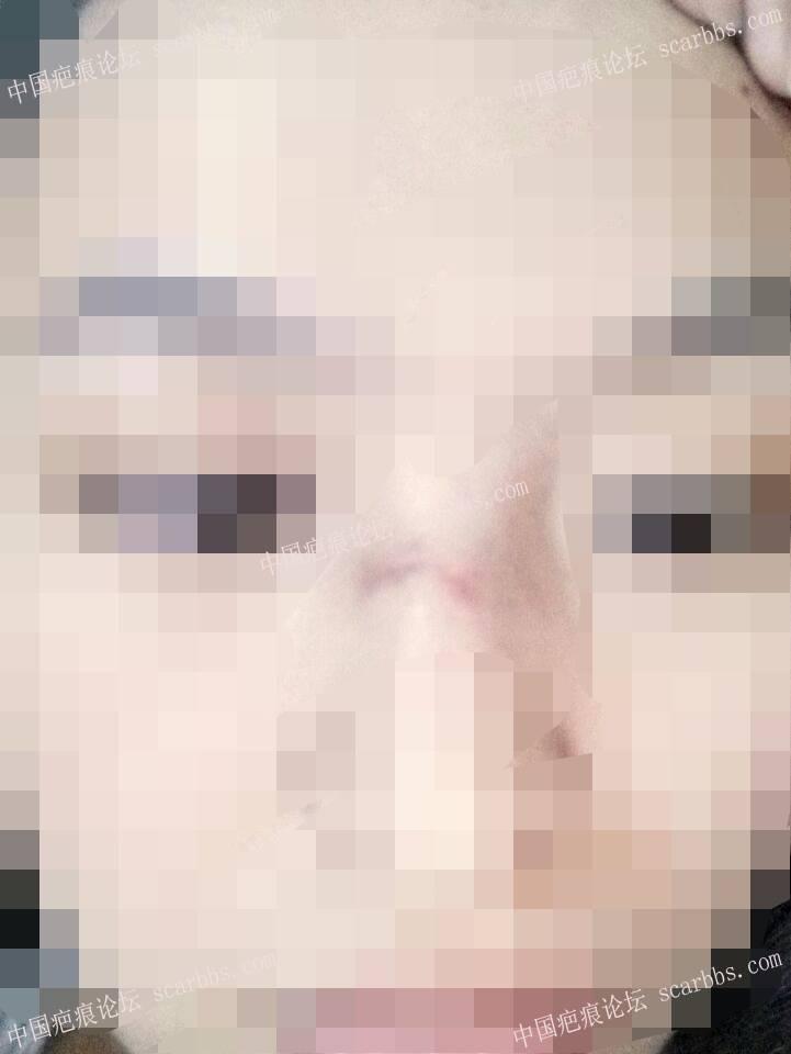 鼻子部位的缝针疤痕治疗恢复图26-疤痕体质图片_疤痕疙瘩图片-中国疤痕论坛