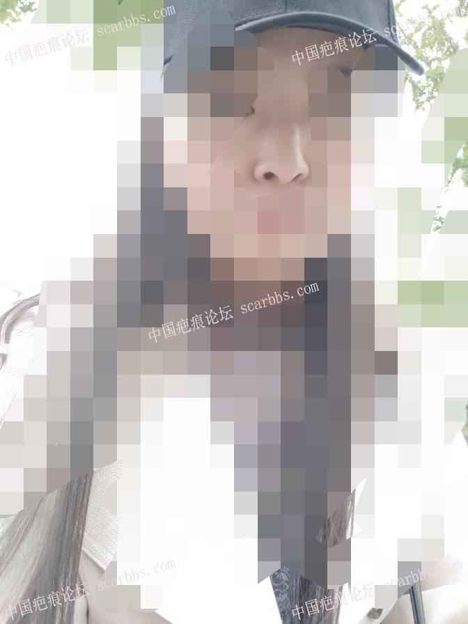 鼻子部位的缝针疤痕治疗恢复图27-疤痕体质图片_疤痕疙瘩图片-中国疤痕论坛