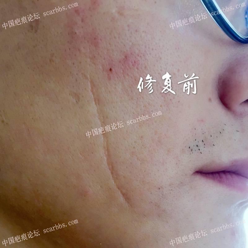 20多年的咬伤疤痕11.14杨东运教授LBD技术切除