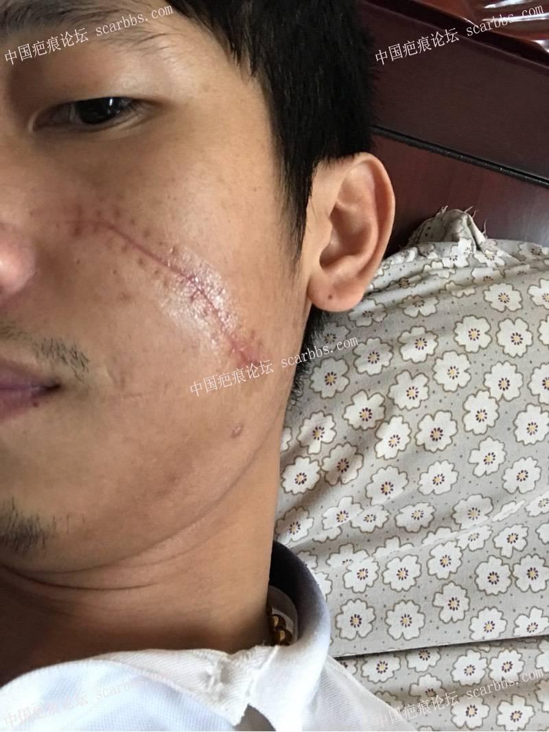 """面部被划伤缝针后成了""""蜈蚣""""状疤痕50-疤痕体质图片_疤痕疙瘩图片-中国疤痕论坛"""