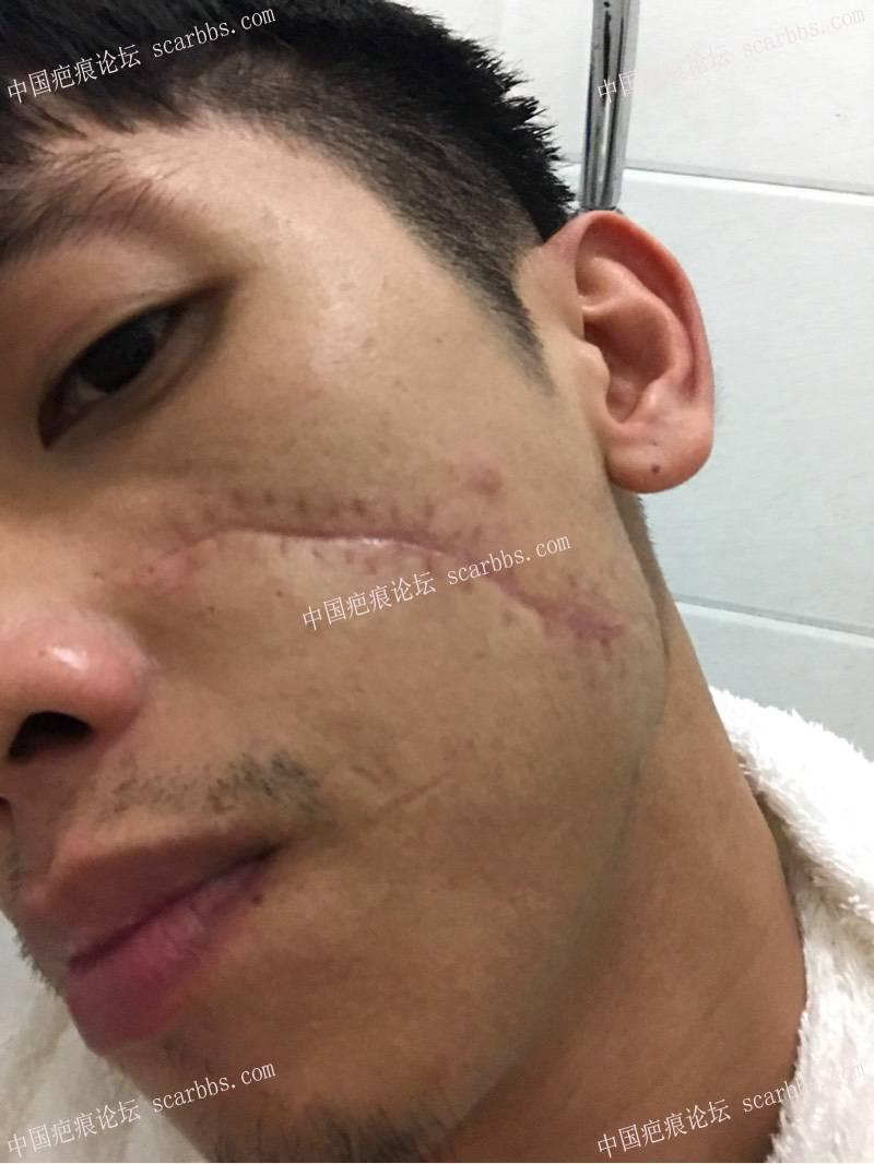"""面部被划伤缝针后成了""""蜈蚣""""状疤痕"""
