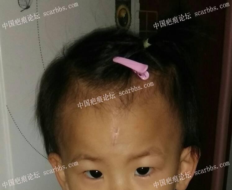 宝贝额头磕伤拆线15天帮忙看下伤口还是紫色正常吗87-疤痕体质图片_疤痕疙瘩图片-中国疤痕论坛