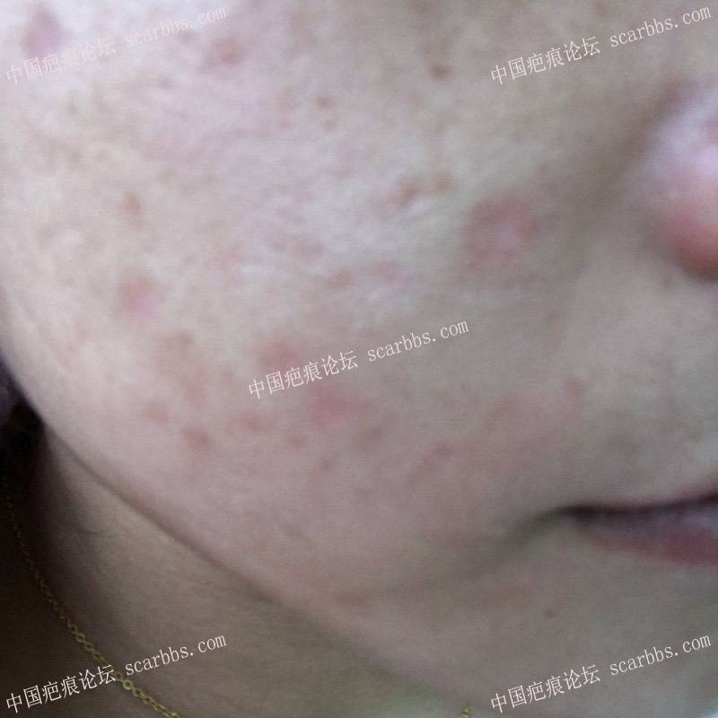面部疤痕一个月多了 怎么办啊这个54-疤痕体质图片_疤痕疙瘩图片-中国疤痕论坛