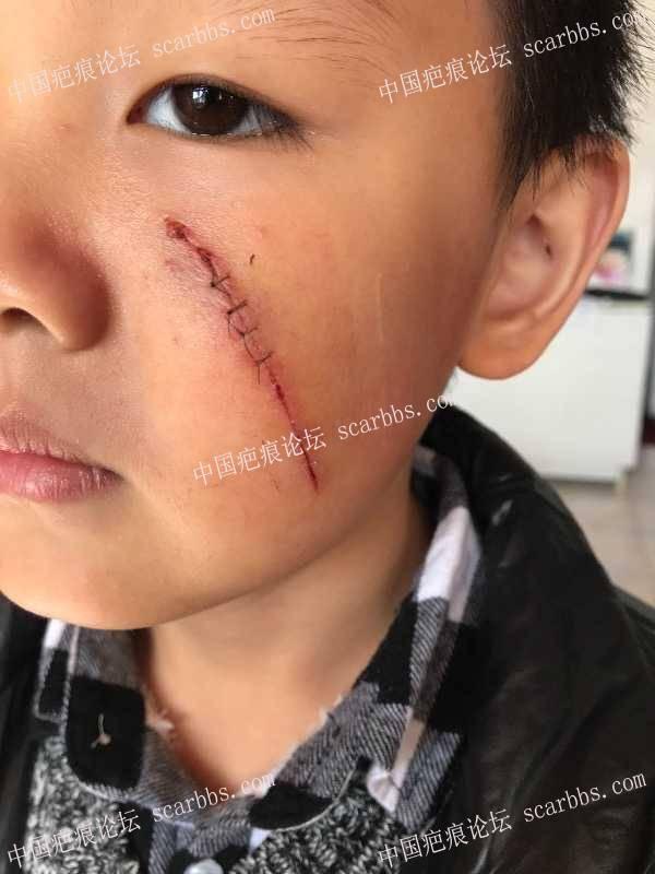 儿子被铁片划伤左脸,祈祷努力还我一个天使宝宝!