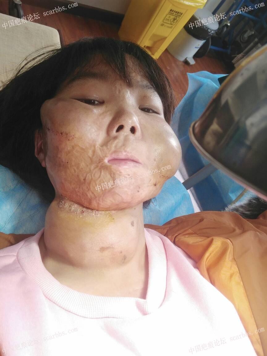 面部烧伤疤痕做的扩张器今天终于可以拆线了74-疤痕体质图片_疤痕疙瘩图片-中国疤痕论坛