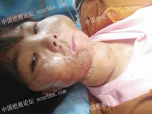 面部烧伤疤痕做的扩张器今天终于可以拆线了77-疤痕体质图片_疤痕疙瘩图片-中国疤痕论坛