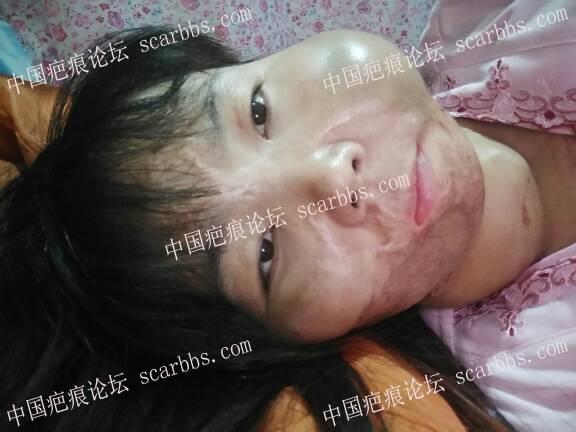 面部烧伤疤痕做的扩张器今天终于可以拆线了32-疤痕体质图片_疤痕疙瘩图片-中国疤痕论坛