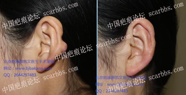 耳垂瘢痕疙瘩如何治疗?49-疤痕体质图片_疤痕疙瘩图片-中国疤痕论坛