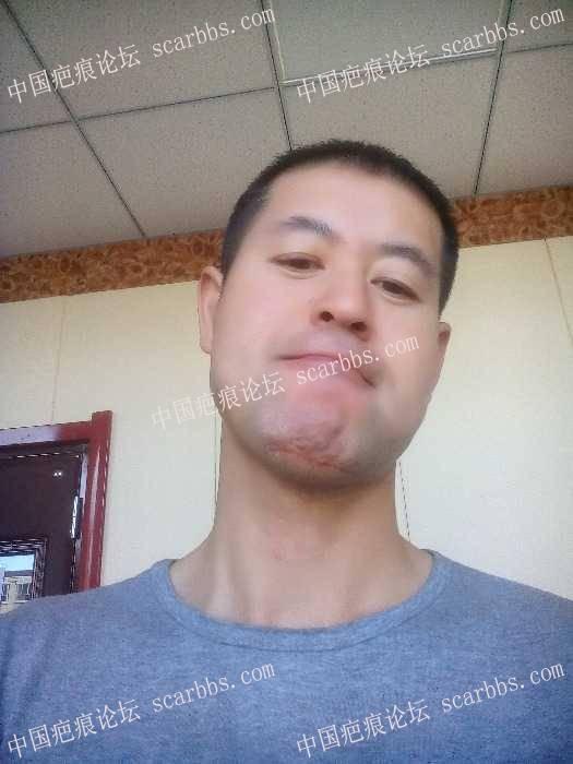017年11月25日下巴处做了切缝手术97-疤痕体质图片_疤痕疙瘩图片-中国疤痕论坛