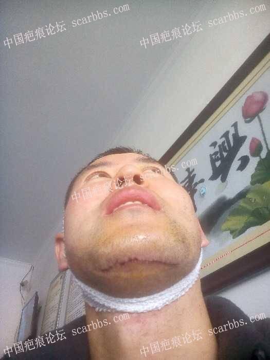 017年11月25日下巴处在北京亚馨做切缝手术