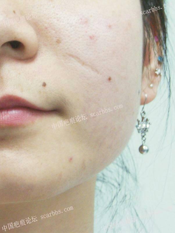 我的脸上疤终于淡化了