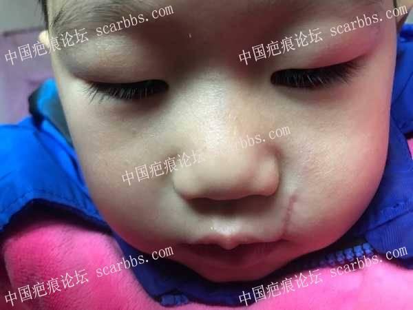宝宝摔伤抗疤一年多的历程 抗疤,抗疤经历,抗疤护理,抗疤心得,儿童抗疤痕,