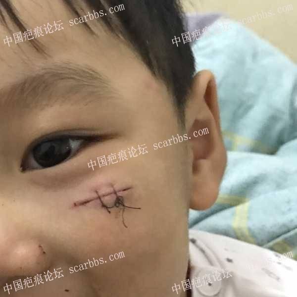 目标无痕,肉眼不明显也可以接受6-疤痕体质图片_疤痕疙瘩图片-中国疤痕论坛