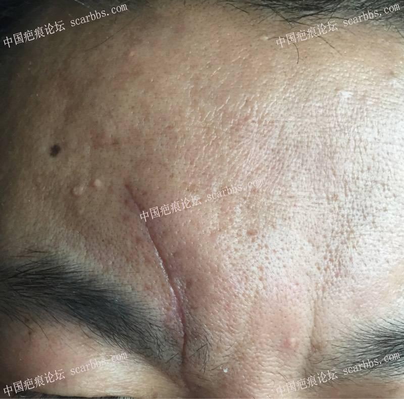额头磕伤疤痕刚好一个月,请大家给点建议
