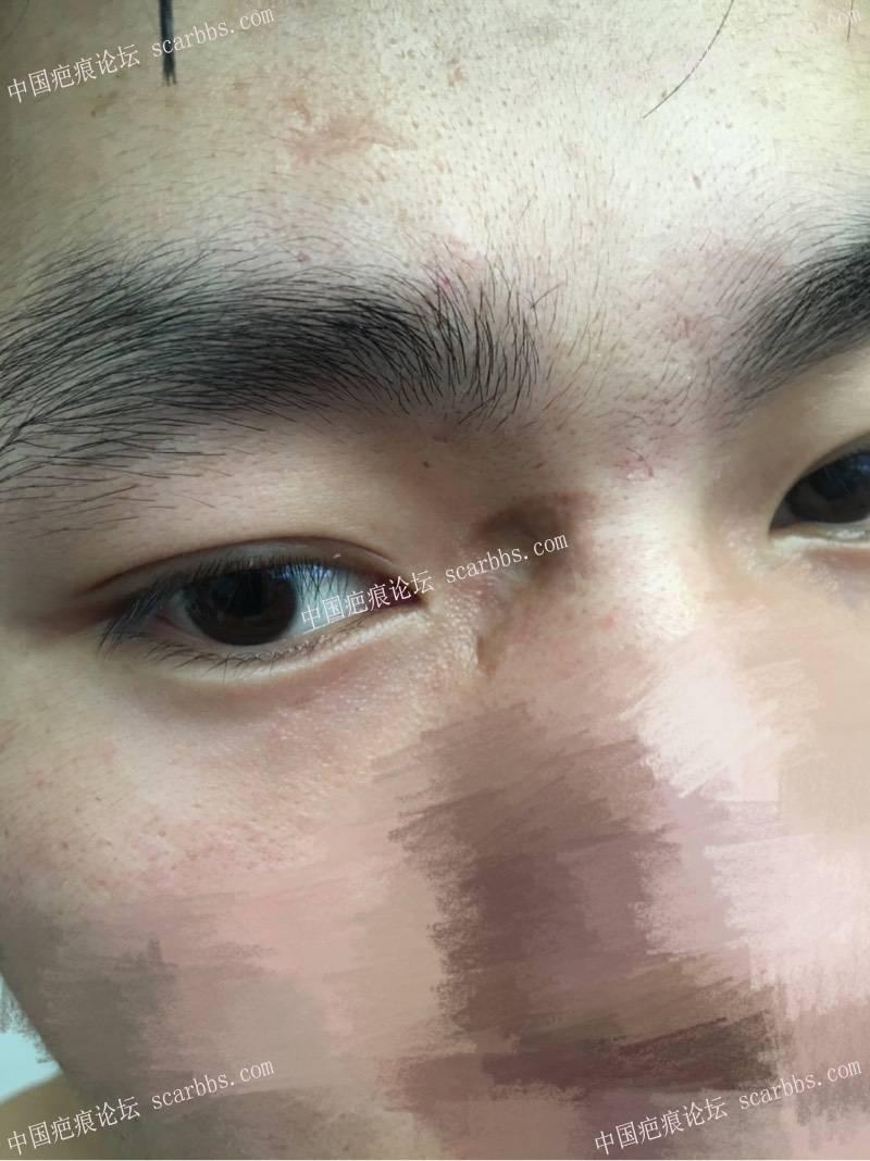 眼角部位凹陷疤痕12.12号转瓣+切缝