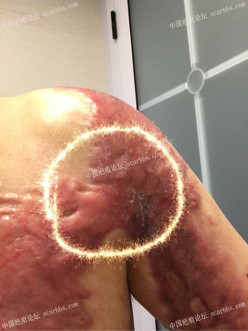 肩部愈合5个多月,严重增生的疤痕怎么修复