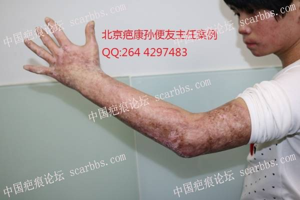 肩部愈合5个多月,严重增生的疤痕,怎么修复?59-疤痕体质图片_疤痕疙瘩图片-中国疤痕论坛