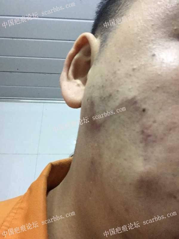 脸部圆形疤痕切缝手术74-疤痕体质图片_疤痕疙瘩图片-中国疤痕论坛