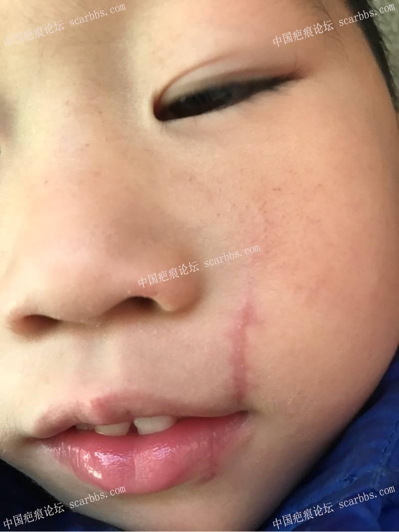 宝宝嘴角旁的疤一个月了,为什么宝宝嘴巴过几分钟往伤口歪动下