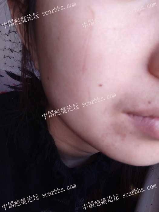 宝贝的小脸无端被抓成了2.5CM的凹疤79-疤痕体质图片_疤痕疙瘩图片-中国疤痕论坛