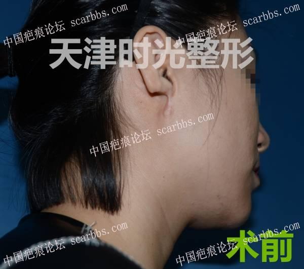 耳再造手术对比