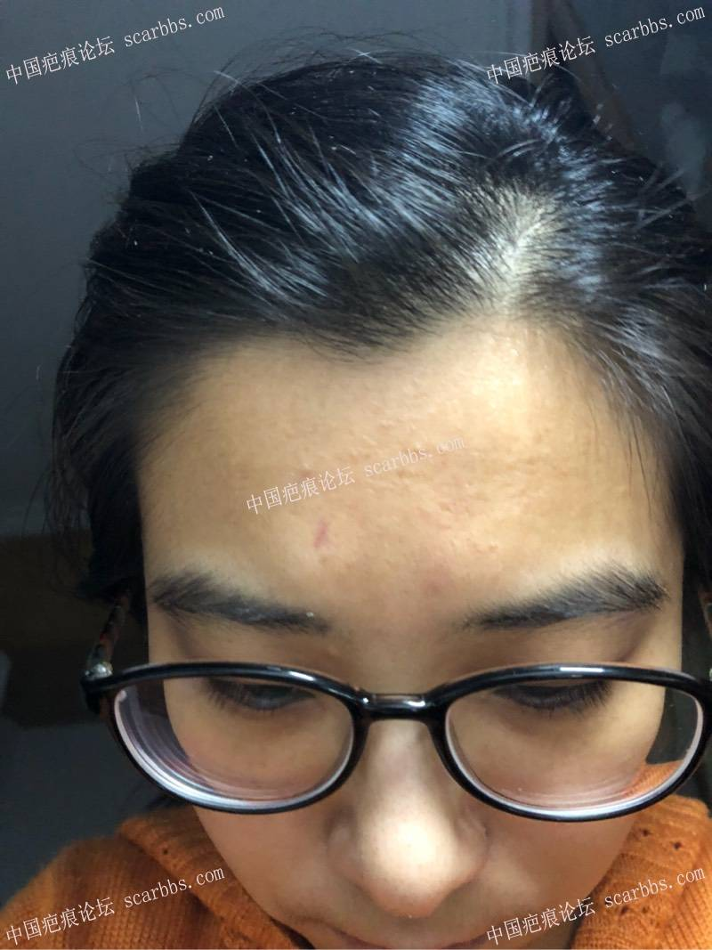 受伤1个月,眼镜鼻托扎进去的,真皮表皮都62-疤痕体质图片_疤痕疙瘩图片-中国疤痕论坛