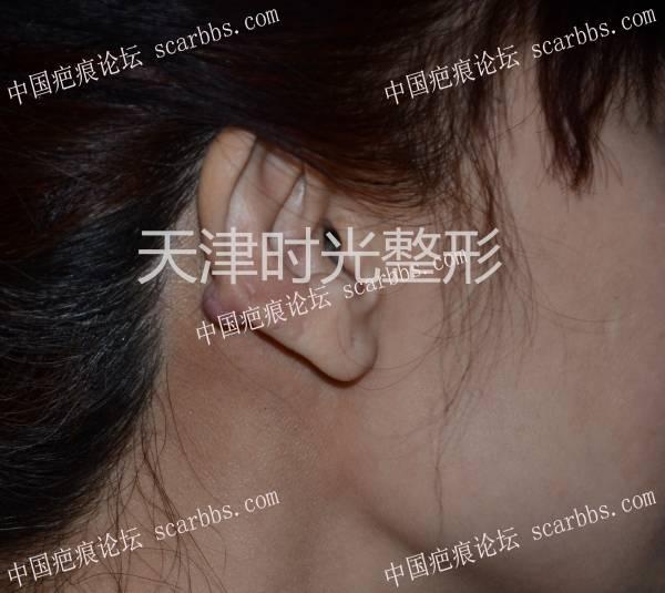 耳廓瘢痕疙瘩切除与形态修复30-疤痕体质图片_疤痕疙瘩图片-中国疤痕论坛