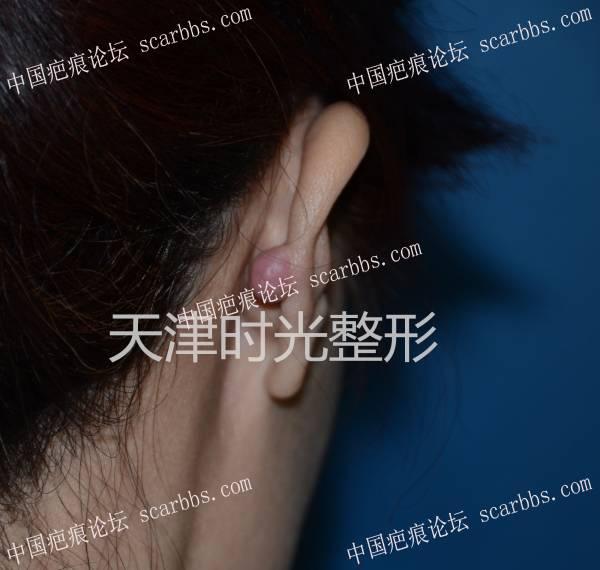 耳廓瘢痕疙瘩切除与形态修复41-疤痕体质图片_疤痕疙瘩图片-中国疤痕论坛