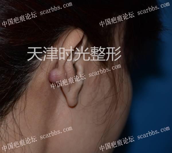 耳廓瘢痕疙瘩切除与形态修复54-疤痕体质图片_疤痕疙瘩图片-中国疤痕论坛