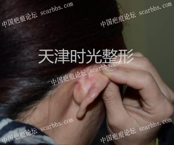 耳廓瘢痕疙瘩切除与形态修复0-疤痕体质图片_疤痕疙瘩图片-中国疤痕论坛