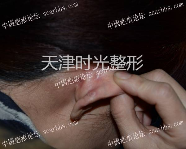 耳廓瘢痕疙瘩切除与形态修复85-疤痕体质图片_疤痕疙瘩图片-中国疤痕论坛