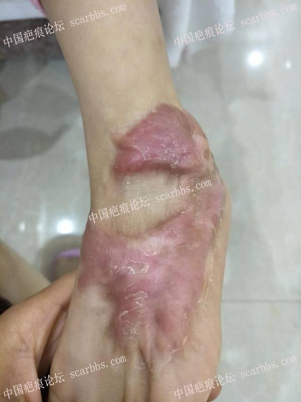 乾佰纳疤痕平 儿童脚上的烫伤增生疤痕