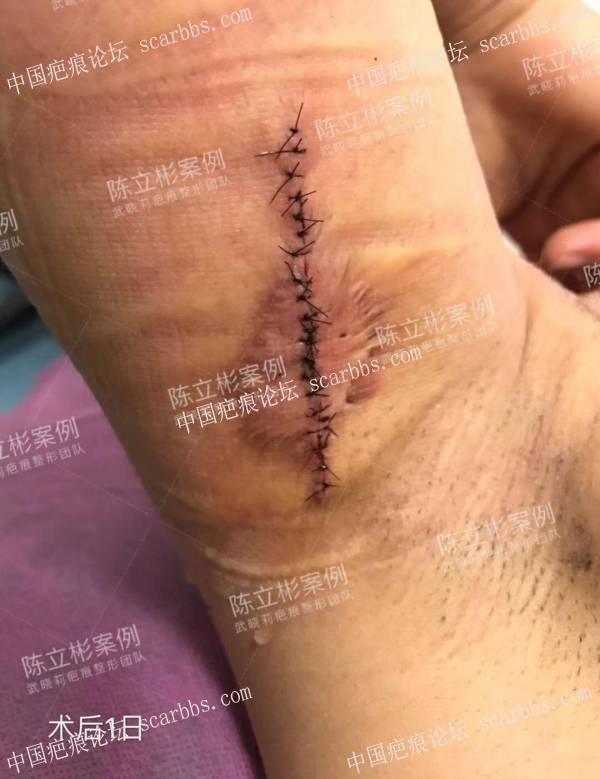 胸部/腋下疤痕疙瘩术后8个月复诊77-疤痕体质图片_疤痕疙瘩图片-中国疤痕论坛