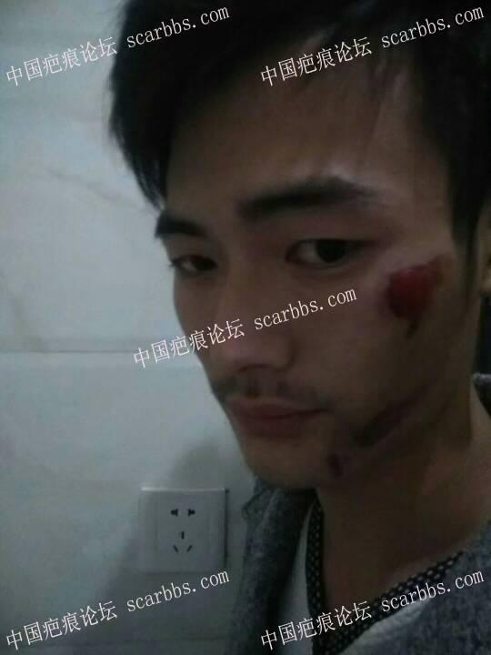 摔伤结痂强行扣掉,导致扣掉位置特别红,有什么办法可以淡化吗,3个月了,13-疤痕体质图片_疤痕疙瘩图片-中国疤痕论坛
