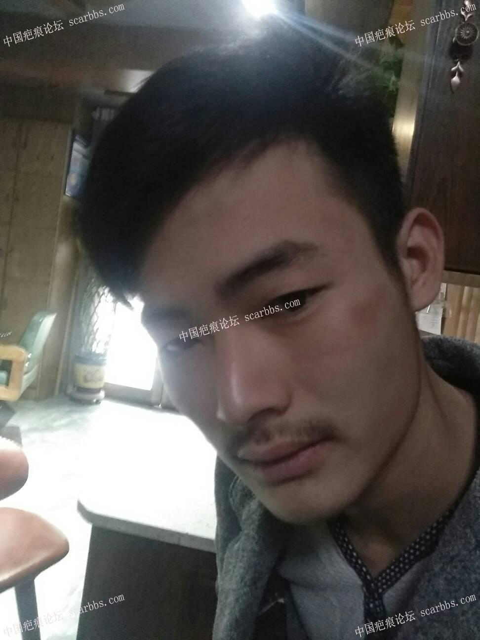 摔伤结痂强行扣掉,导致扣掉位置特别红,有什么办法可以淡化吗,3个月了,69-疤痕体质图片_疤痕疙瘩图片-中国疤痕论坛
