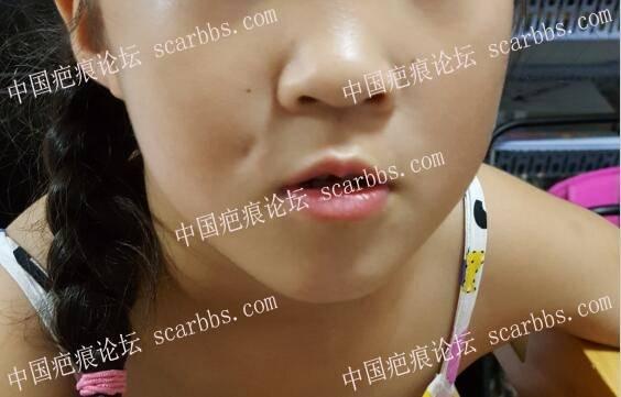 盾物磕伤导致面部凹坑皮下粘连83-疤痕体质图片_疤痕疙瘩图片-中国疤痕论坛